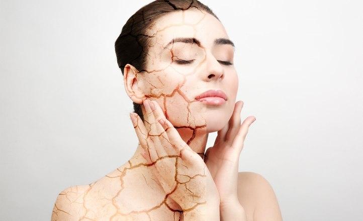 Мадина Байрамукова: как поддерживать кожу от пересушивания в зимний период
